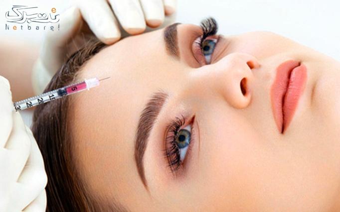 PRP در کلینیک پوست و مو اسپادانا