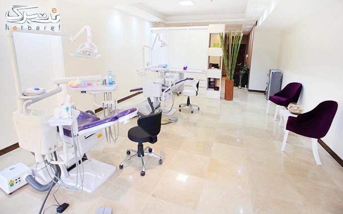 جرم گیری با بروساژ در مطب دندان پزشکی دکتر فضائلی