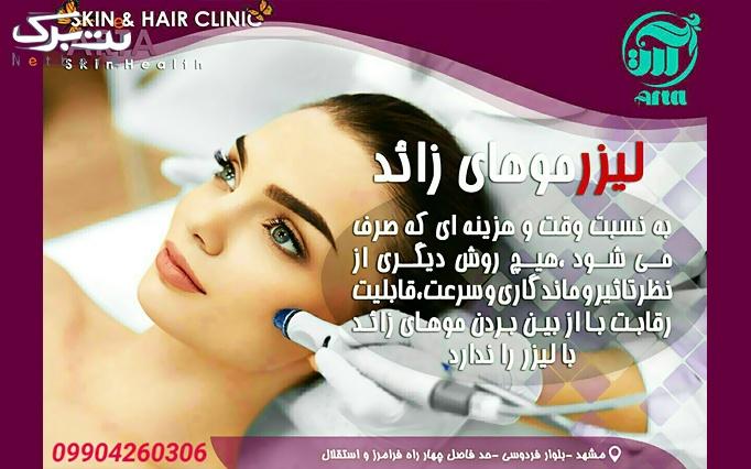 لیزر الکساندرایت آلما در کلینیک پوست و موی آرتا