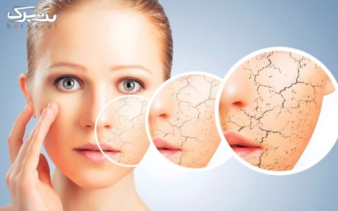 مشاوره پوست در مطب دکتر ذاکری
