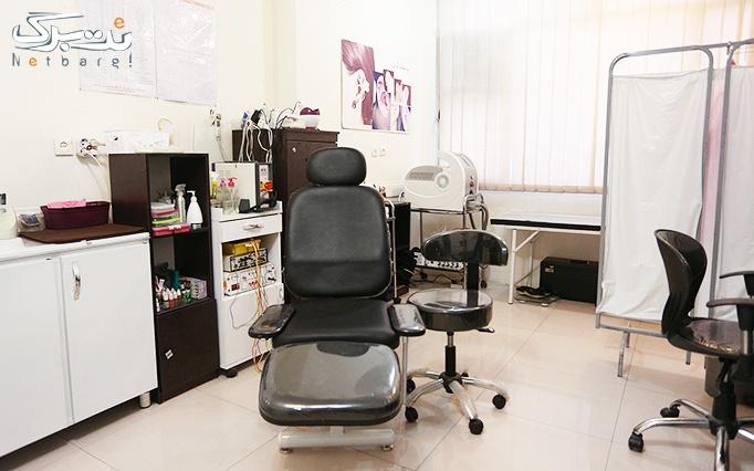 رفع پف، تیرگی و خطوط ریز دور چشم در مطب دکتر جلالی