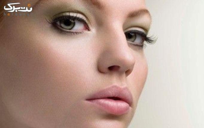 اصلاح صورت در سالن زیبایی آلا