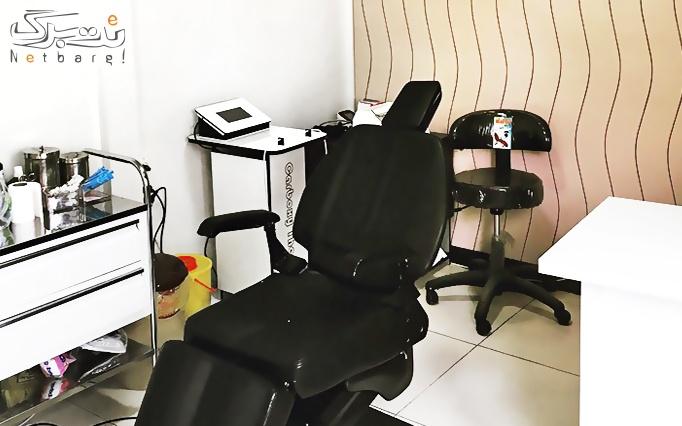 لیزر elight-SHR در مطب دکتر سید پیمان شریعتی