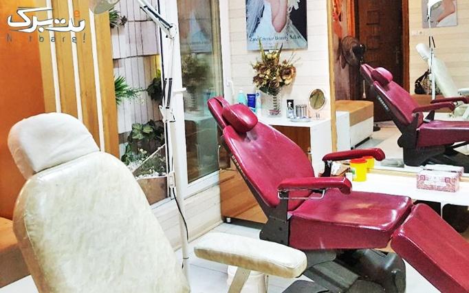 اپیلاسیون در آرایشگاه رز سرخ