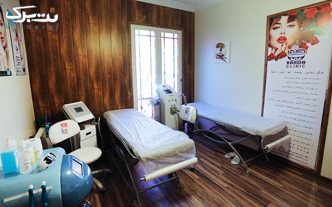 الکساندرایت در مطب دکتر ایزدی