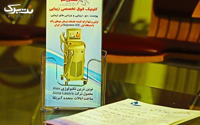 لیزر الکساندرایت در مطب دکتر احمدیان
