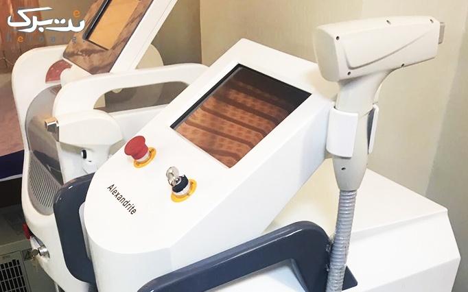 لیزر الکساندرایت matrix در مطب دکتر تازیک
