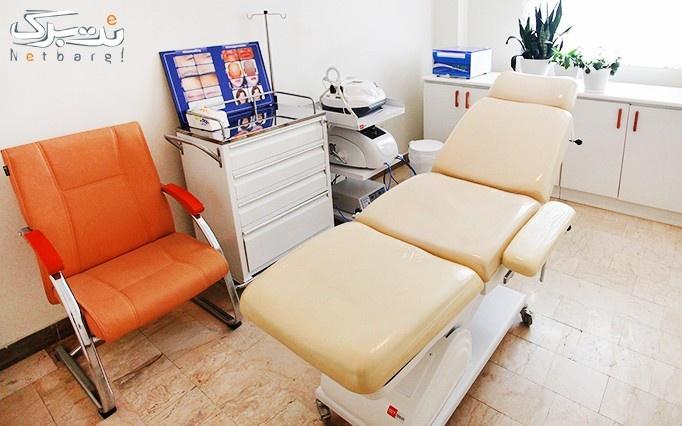 میکرونیدلینگ در مطب خانم دکتر امیرآبادی