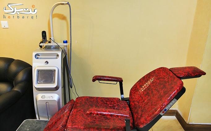 لیزر دایود در مطب دکتر آذری