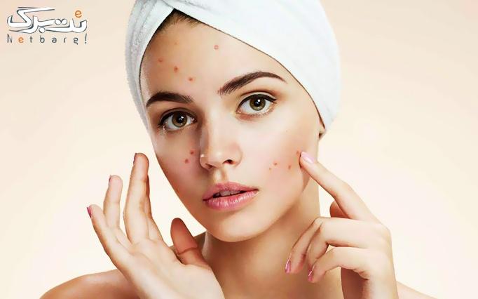 پاکسازی پوست صورت در آرایشگاه عروس مهتا