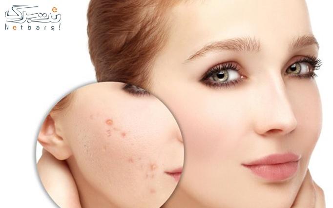 پاکسازی پوست صورت در درمانگاه اسپادانا