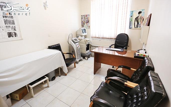 لیزر elight در مطب دکتر سدیدی
