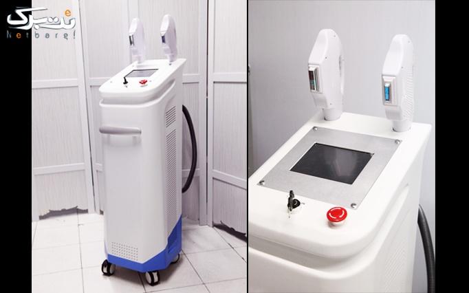 لیفتینگ صورت با نخ کلاژن در مطب دکتر صمدزاده