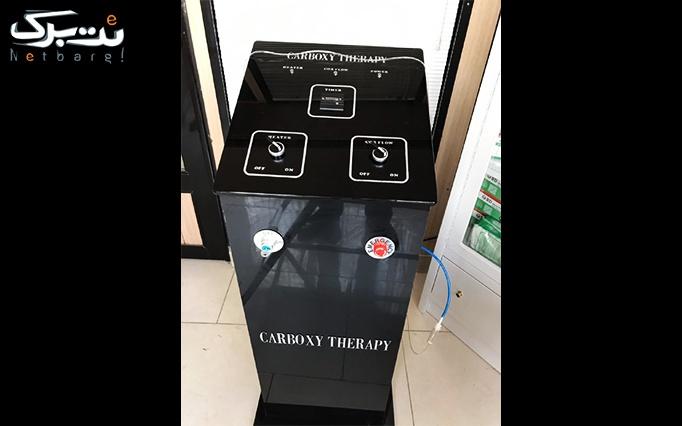 تزریق بوتاکس درماتکس در مطب آقای دکتر تاجیک
