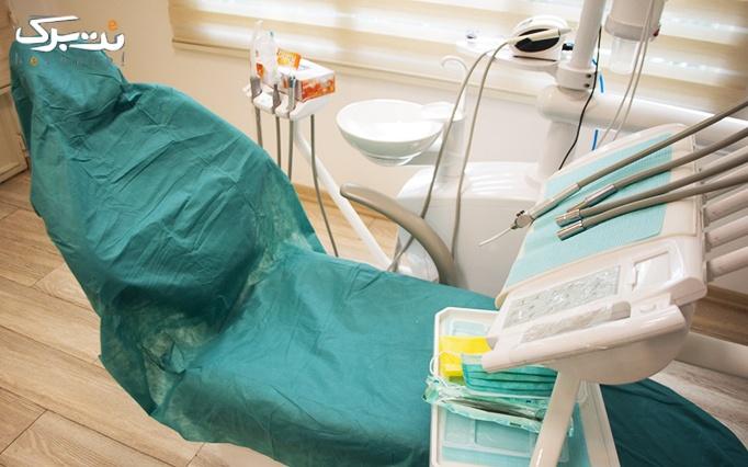 جرمگیری دندان و بروساژ دندان توسط خانم دکتر ایرانی