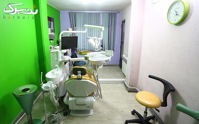 بن تخفیف دندانپزشکی در مطب دکتر احسان پور