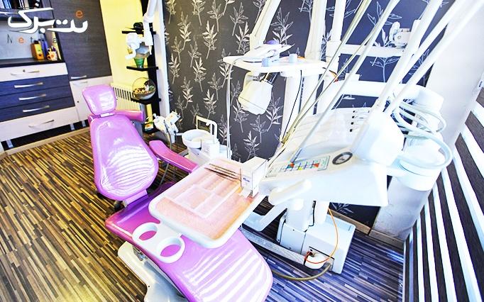 جرمگیری دندان و بروساژ در مطب دکتر داوودمنش