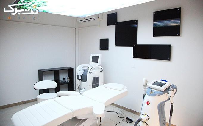 کرایولیپولیز در مطب دکتر امامیان