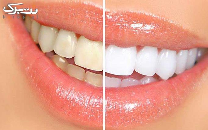 جرمگیری دندان توسط دکتر کیانی