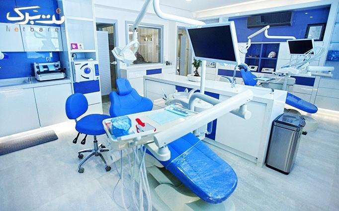 کاشت نگین بر روی دندان توسط دکتر کیانی