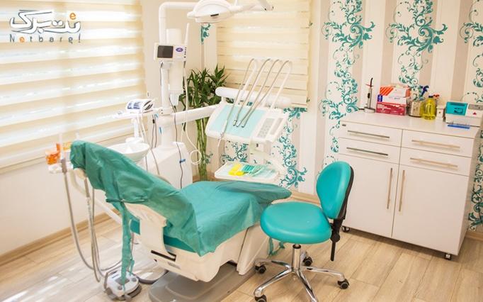 جرمگیری دندان و بروساژ دندان در مطب دکتر نقی زاده