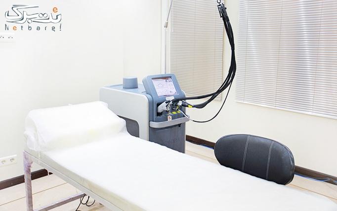 لیزر الکساندرایت کندلا در مطب دکتر صدر عاملی