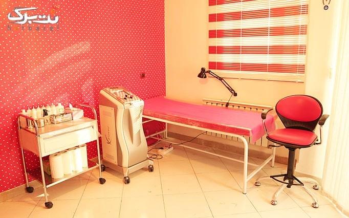 لیزر الکساندرایت کندلا در مطب دکتر کمالی