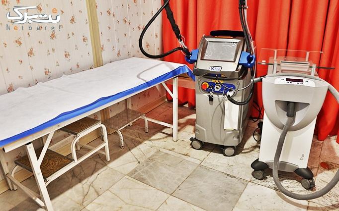 لیزر الکساندرایت دکا در مطب دکتر غلامی