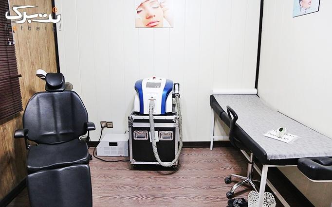 لیزر دایود در مطب خانم دکتر اناری