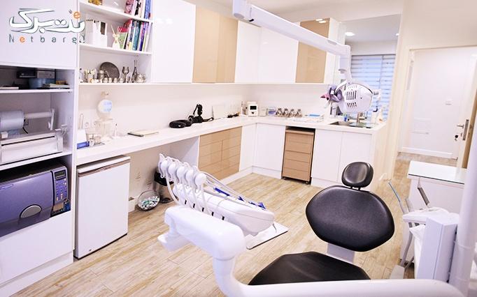 جرمگیری دندان و کامپوزیت دندان توسط دکتر مهر جردی