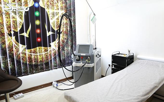 لیزر الکساندرایت کندلا در مطب دکتر محمدی