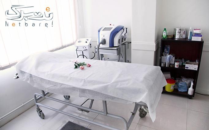 لیزر الکساندرایت کندلا در مطب دکتر مهرابی