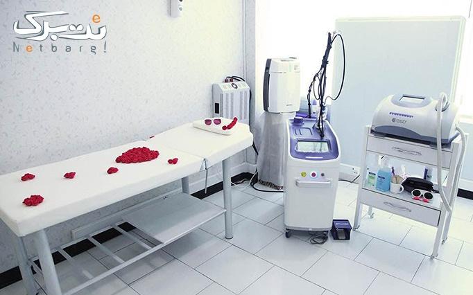لیزر الکساندرایت در مطب دکتر سعادت