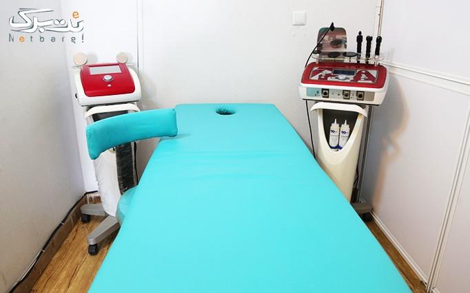 لیزر الکساندرایت در مطب دکتر سلطانی نژاد