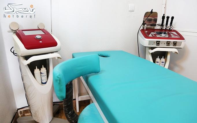 میکرودرم در مطب دکتر سلطانی نژاد