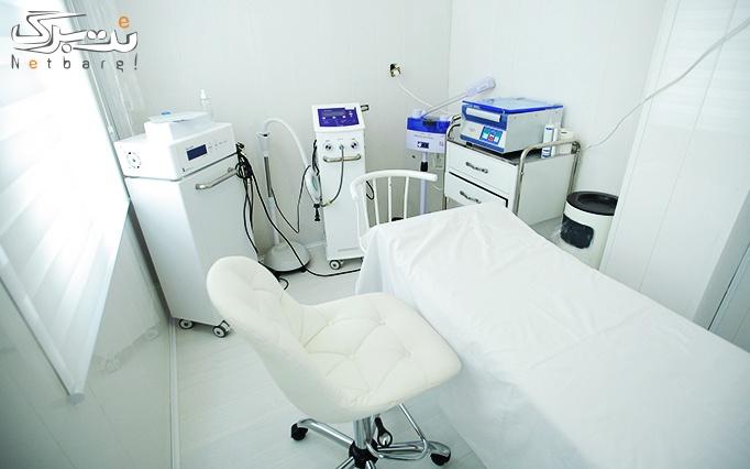 میکرونیدلینگ در مطب دکتر علائی