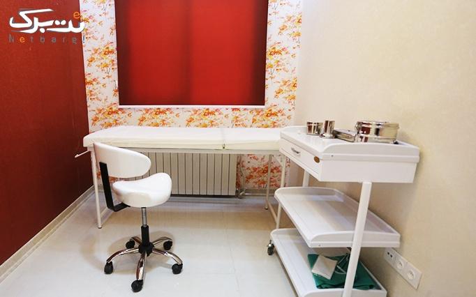 لیزر الکساندرایت ویژه زیر بغل در مطب دکتر موسوی