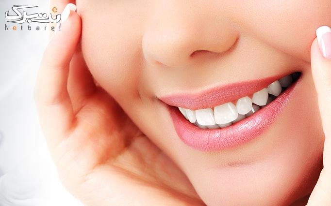 جرمگیری دندان و بروساژ دندان در مطب دکتر علی پور