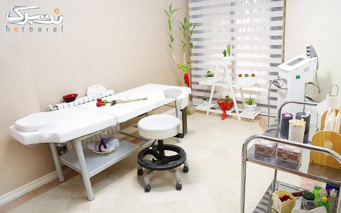 لیزر الکساندرایت در مطب دکتر صدقی