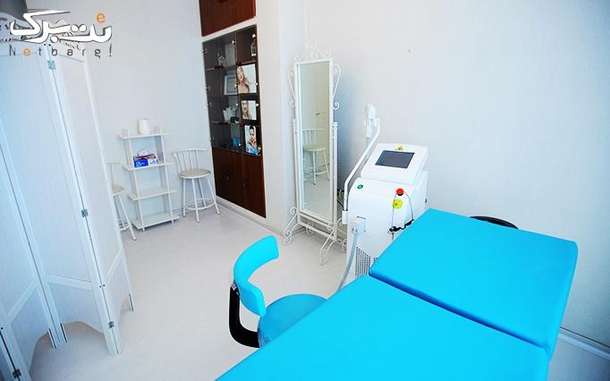 میکرودرم در مطب دکتر علائی