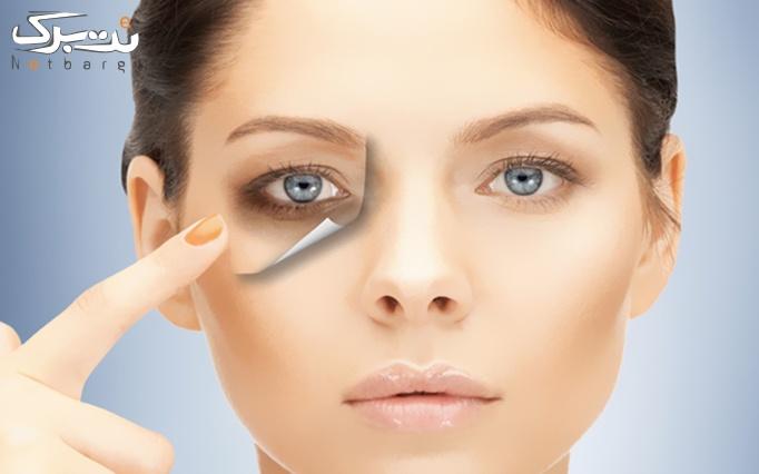 پاکسازی تخصصی صورت در مطب دکتر نصیری