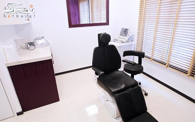 لاغری موضعی با RF در مطب دکتر حیات اله