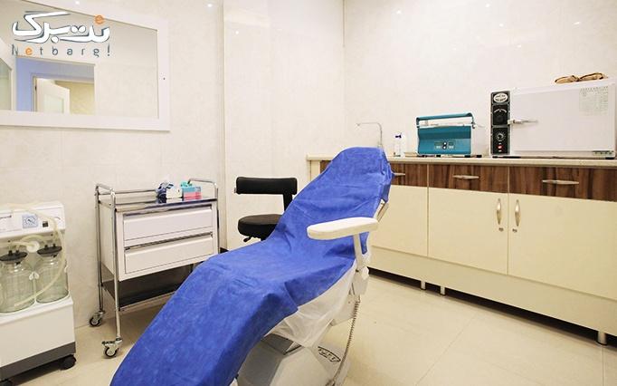 سوراخ کردن گوش در مطب دکتر حیات اله