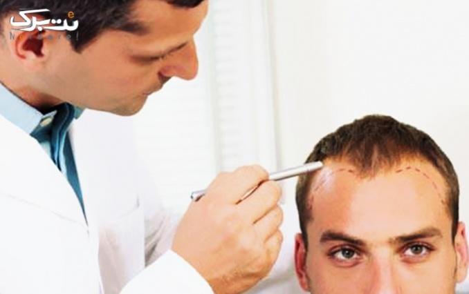 ویزیت و مشاوره جلوگیری از ریزش مو در درمانگاه تخصص