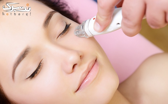 مزوتراپی صورت یا مزوتراپی مو در مطب دکتر سعادت