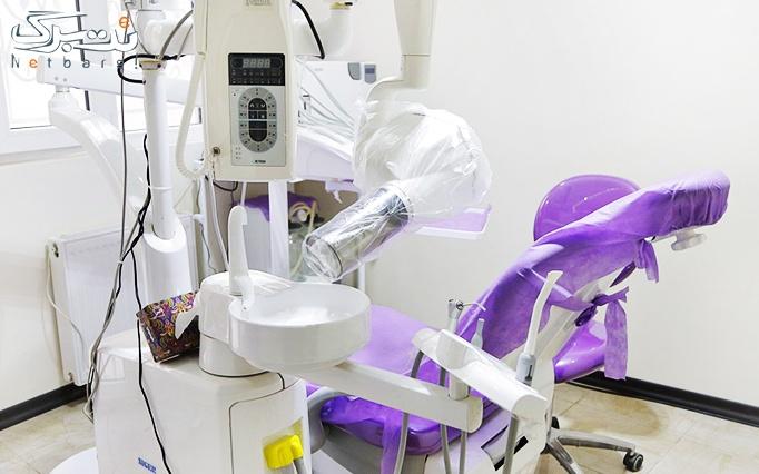 جرمگیری دندان و بروساژ دندان در مطب دکتر اصلانی