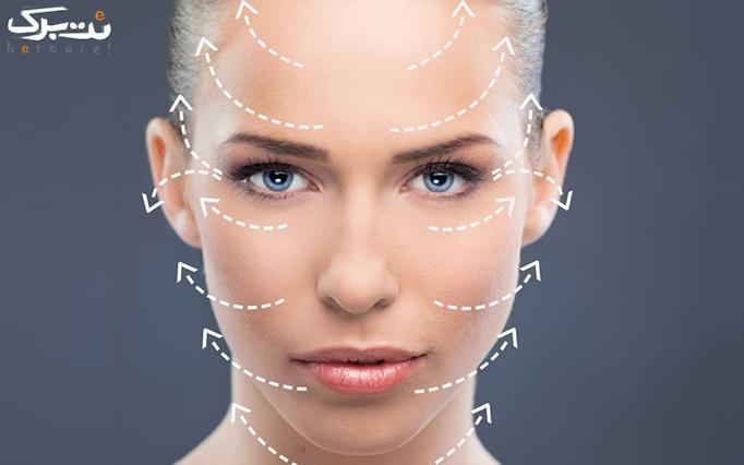 جوانسازی صورت با نخ کلاژن توسط خانم دکتر ولایی