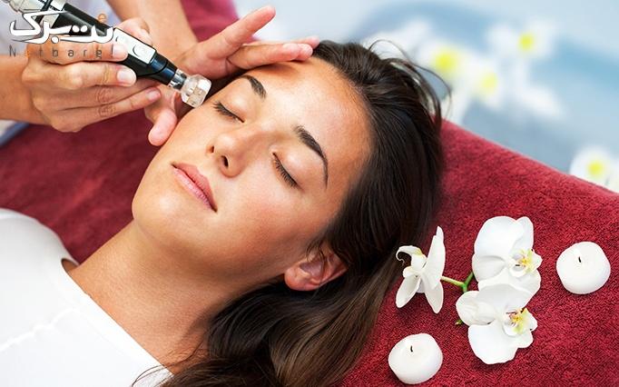 لیزر ویژه کل بدن در کلینیک تخصصی پوست و مو بهین