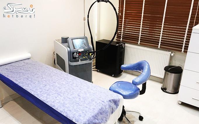 لیزر الکساندرایت کندلا در مطب دکتر عاشوری