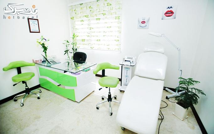 لیزر الکساندرایت آپوجی در مطب دکتر سیاوشانی